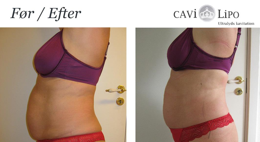 fettsuging mage før og etter bilder